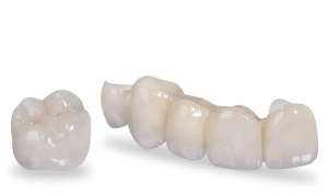 zirconia crown, bridge