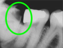 wisdom tooth: decay