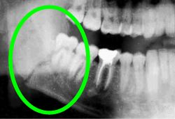 wisdom tooth: fractured jaw